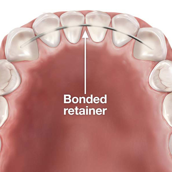 Fixed Retainers